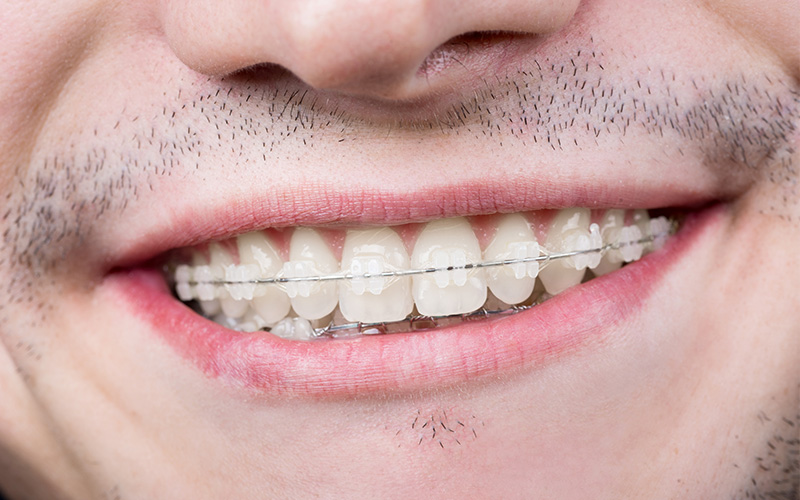 ceramic braces porter tx