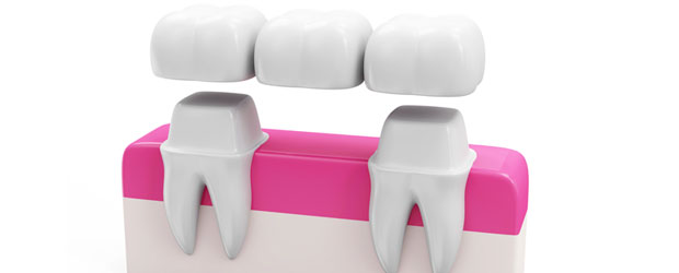 dental-bridgess-1