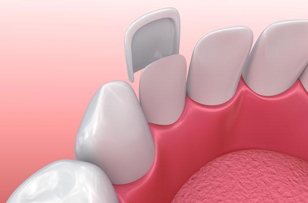 dental-venner-1