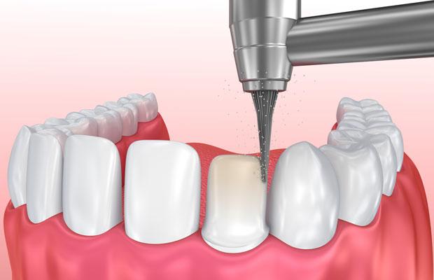 dental-venner