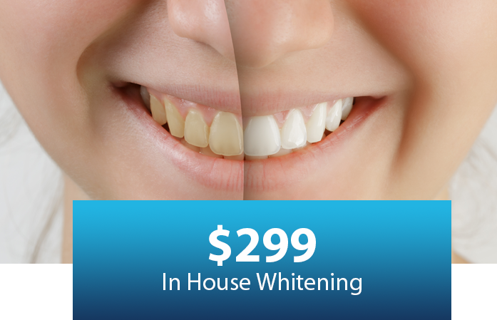 Teeth Whitening In Porter Tx