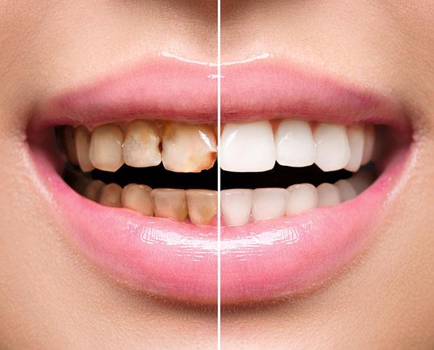 teeth-whites-01