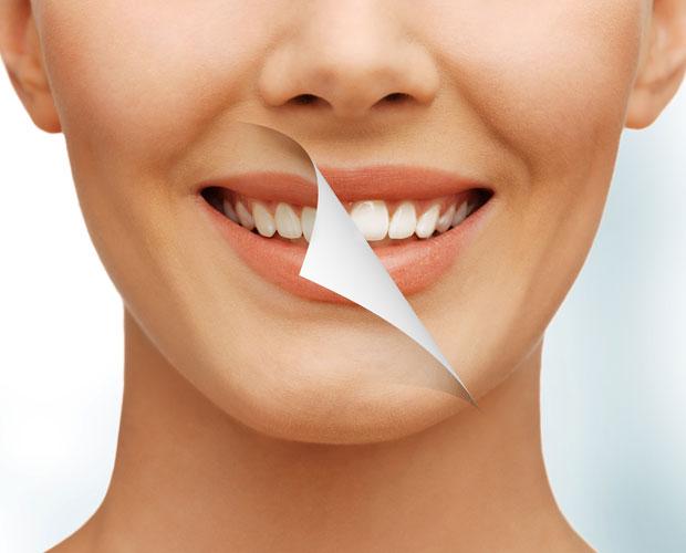 teeth-whites